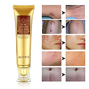 Amazon Com Scar Removal Cream 2 Pack Tcm Scar And Acne Marks