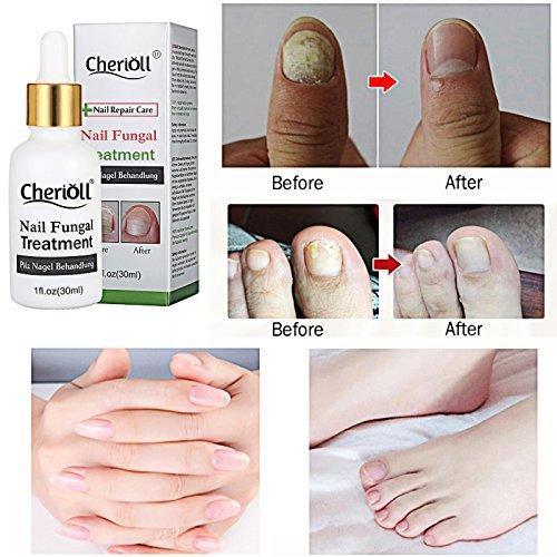 Nail Fungus Treatment,Nail Antifungal Treatment,Fungus Stop,Anti ...