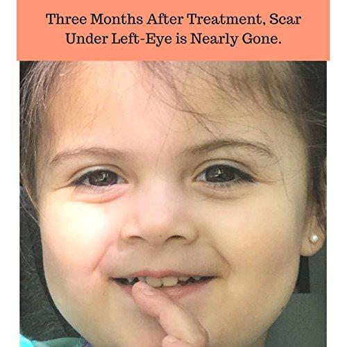 Scarless MD | Advanced Silicone Scar Removal Cream w/Vitamin E