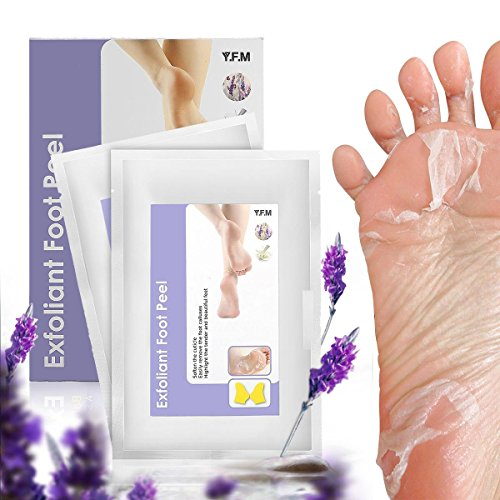 Soft Peel (Foot Peel Mask,LuckyFine - 2 Pairs Foot Peeling Mask,Exfoliating Calluses and Dead Skin Remover, Repair Rough Heels, Get Soft Foot,Lavender Scented,Peel second day,Completely within 4-7 days)