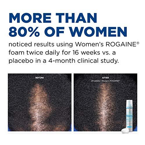 Women's Rogaine 5% Minoxidil Foam for Hair Thinnin...