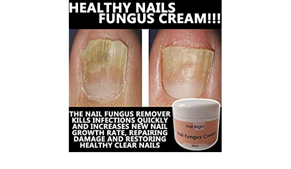 Amazon.com: Nail Bright Number One Nail Fungus Remover !! Fast ...