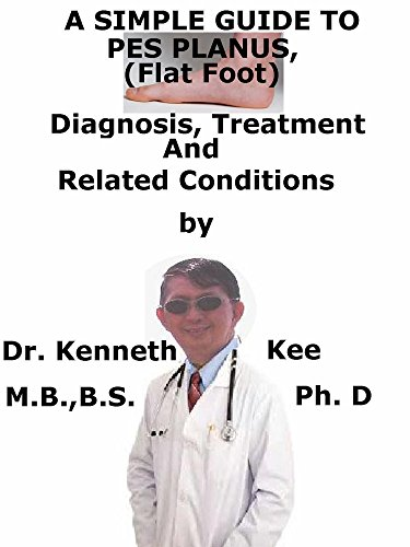 A Simple Guide To Pes Planus, (Flat Foot) Diagnosis, Treatment And