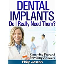 Dental Implants: Do I Really Need Them? (Removing Fear and Providing Questions)