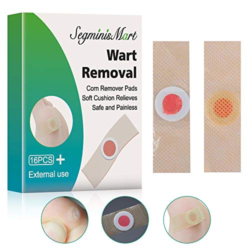 Best Foot Wart Removal