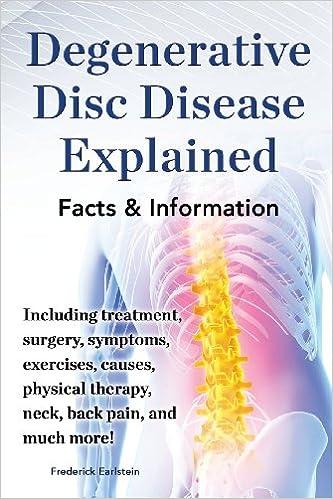 Degenerative Disc Disease Explained  Including Treatment, Surgery