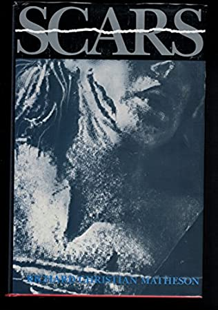 book cover of Scars and Other Distinguishing Marks