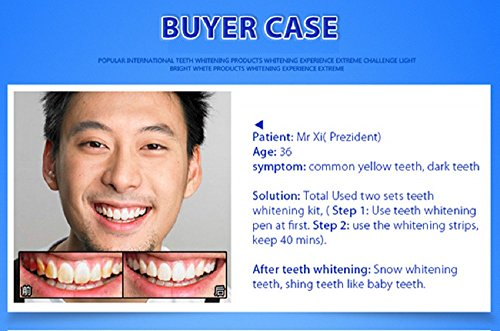 Flashy Bright Beautiful Smile (14 Days) Teeth Express Professional Quality 28 Whitening Strips (6% Hydrogen Peroxide) + 1 Whitening Pen Kit (44% Carbamide Peroxide) + 100% Money-Back GUARANTEE