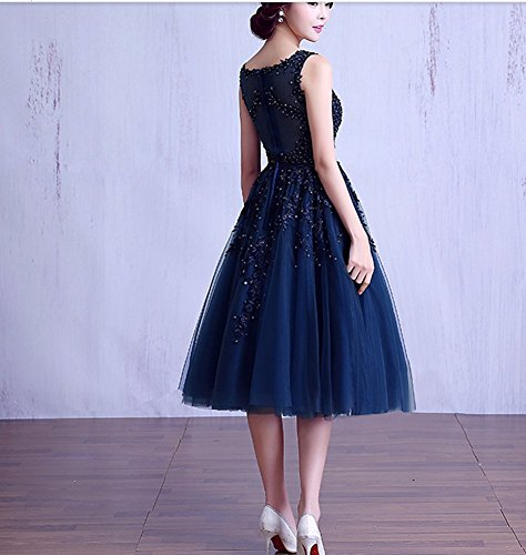 Dark Abend Hochzeit emmani Ball Lila Heimkehr Länge Garn Party Celebrity kleidungstücke Medium Damen Net Cocktail Kleider Rosa Blau Weiblich Damen New Abendkleider Rose ärmellos aq4ZwIq