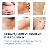 Medical Grade Silicone Scar Removal Sheets by