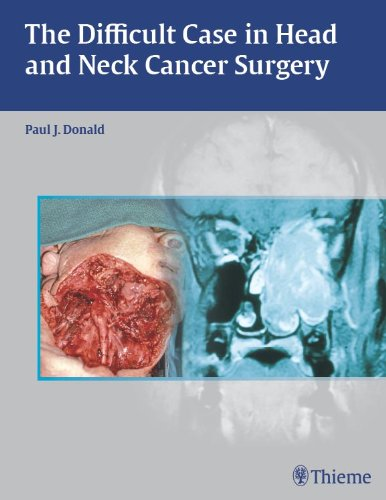 The Difficult Case in Head and Neck Cancer Surgery (1st 2010) [Donald]