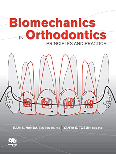 Biomechanics in Orthodontics: Principles and Practice (Principles Of Appliance Therapy)