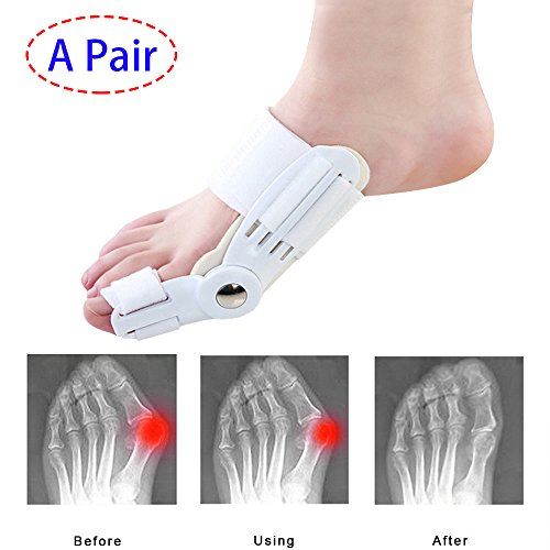(A Pair)Thinvik Bunion Corrector Orthopedic Brace Splint – Hallux Valgus Corrector Bunion Pads for Women and Men ,Foot Pain Relief Surgery Treatment Toe Separators Straighteners – splints & Supports Review