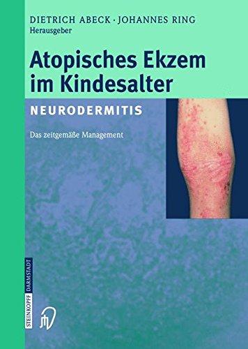 Atopisches Ekzem im Kindesalter (Neurodermitis): Zeitgemaßes Management  (Tapa Blanda)