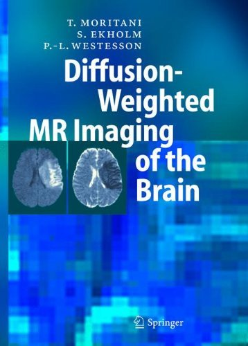 Diffusion-Weighted MR Imaging of the Brain by T. Moritani (2005-04-05)