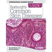 Roxburgh's Common Skin Diseases