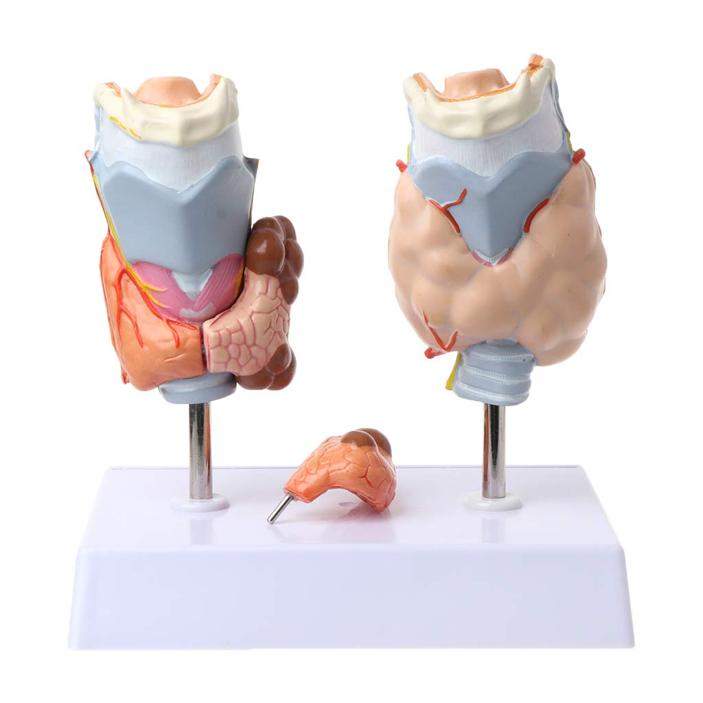 Fench Human Thyroid Anatomical Pathology Model Normal and Disease Pathologies Medical Teaching Resource Tool