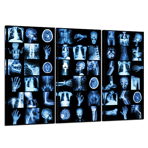 (Kreative Arts - Large 3 Pieces HD X-ray Skull Canvas Wall Art Stretched and Wood Framed Print Picture Modern Home Canvas Painting Wall Decor Art for Room Ready to Hang 16x32inchx3pcs)