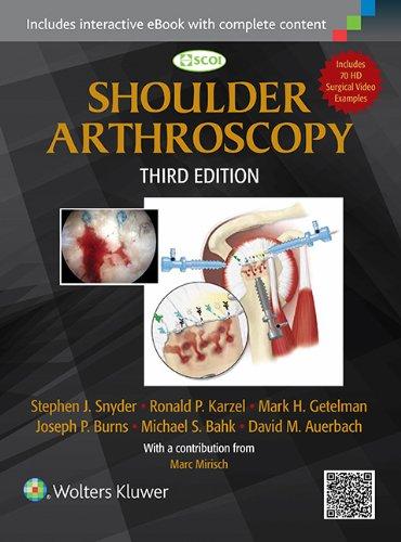 Shoulder Arthroscopy ()