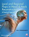 Local and Regional Flaps in Head & Neck Reconstruction: A Practical Approach