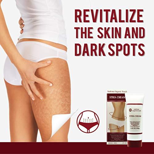 STRIA Natural Stretch Marks, Scar & Dark Spot Remover | Stretch Mark Cream for Skin Hydration, Exfoliation, Tightening & Collagen Boost | Pregnancy Belly Care for Prenatal-Postnatal & Pregnant | 3 pcs by GreenTouch (Image #4)