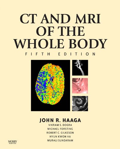 Computed Tomography & Magnetic Resonance Imaging Of The Whole Body (Computed Tomography and Magnetic Resonance Imaging of the Wh) Pdf