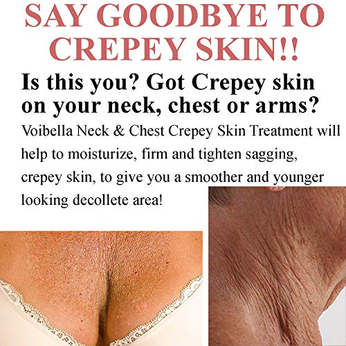 51dYoCVLOyL - Best Neck & Chest Firming Cream for Sagging, Crepey Skin & Wrinkles. Anti-Aging Crepe Eraser, Turkey Neck Tightener & Decolletage Lotion. Works for Tightening Decollete, Double Chin, Arms, Body & Face