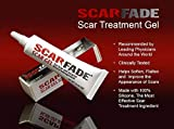 Best Acne Scar Gels - Scarfade Silicone Gel for Scar Repair - 15g Review