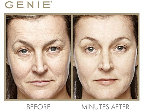 Genie Instant Line Smoother by Genie Beauty Products (Image #1)