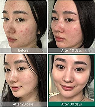 Ifactory SomeByMi Aha.Bha.Pha 30Days Miracle Toner 150ml 5oz x2 Pcs Set Anti-acne Exfoliation Hydration Brightening 2 Pcs