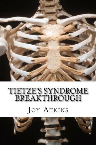 Tietze's Syndrome Breakthrough ebook