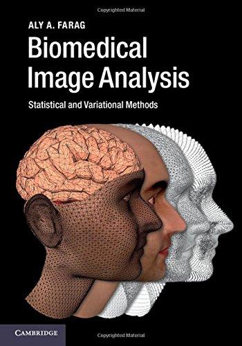 Biomedical Image Analysis: Statistical and Variational Methods