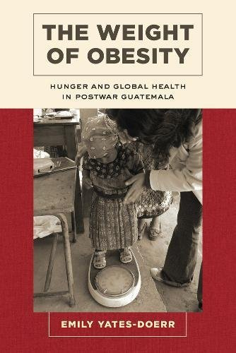 The Weight of Obesity: Hunger and Global Health in Postwar Guatemala (California Studies in Food and Culture)