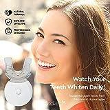 AsaVea Premium Teeth Whitening Kit, LED