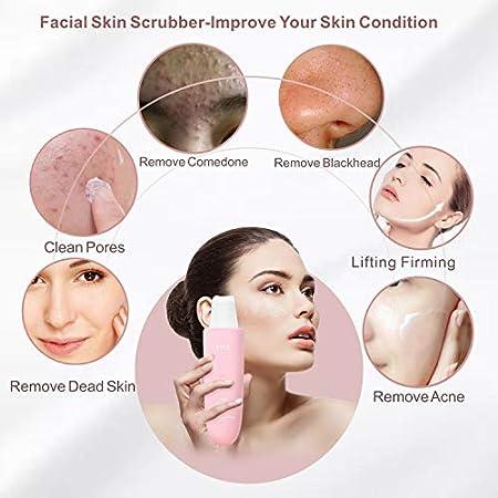 SEQI Limpiador Facial Ultrasónico, Peeling Ultrasónico Facial con 3 Modos,Skin Scrubber, USB Recargable, Exfoliación Facial Ultrasónica Limpiador de Poros para Limpieza Facial y Cuidado Facial(rosa)