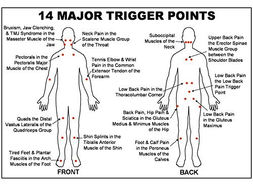 14 major trigger points