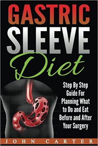 Gastric Sleeve Diet Step By Step Guide For Planning What To Do And