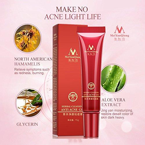 Generic Herbal Cleansing Gel Face Anti Acne Treatment Cream Herbal
