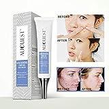 Facial Rash On One Side Of Face - Cutelove Acne Treatment Cream Tea Tree Oil Essence Clears Away Acne, Pimples, Lightening Acne Scars 20g