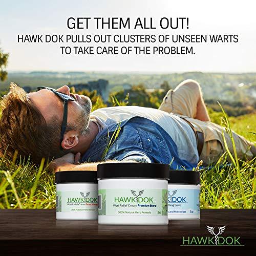 Hawk Dok Genital Wart Relief Cream, Herbal Natural Warts Relief Premium  Blend for Men and Women - 1oz