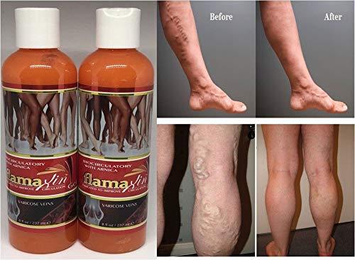 (Pack of 2 FLAMAXIN with Arnica, Varicose Spider Vein Treatment Gel Circulation Cream Varices Crema (Gel venas varicosas, circulacion de la Sangre piernas) Alivia Dolor.)