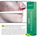 Tetyana naturals Scar Gel, Acne Scar Removal for