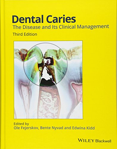 Dental Caries: The Disease and its Clinical Management by imusti