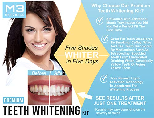 Buy whitening kit for sensitive teeth