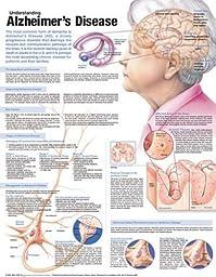 Understanding Alzheimer\'s Disease Anatomical Chart