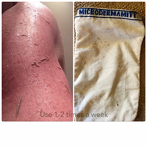 41z%2BkTADhBL Microdermamitt Deep Exfoliating Mitt Bath Glove Mitten for Body Scrub - Best Dry Skin Treatment, - Remove Dead Skin, Keratosis Pilaris Bumps Instantly