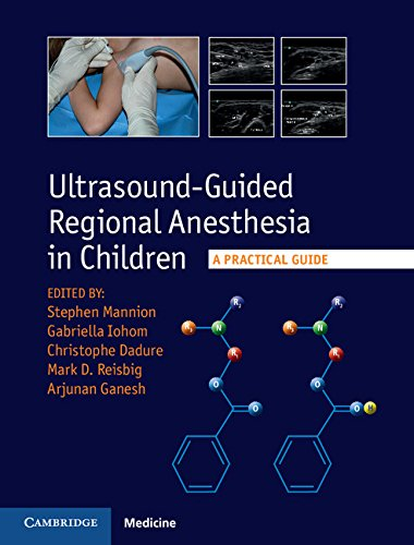 Download Ultrasound-Guided Regional Anesthesia in Children: A Practical Guide Pdf