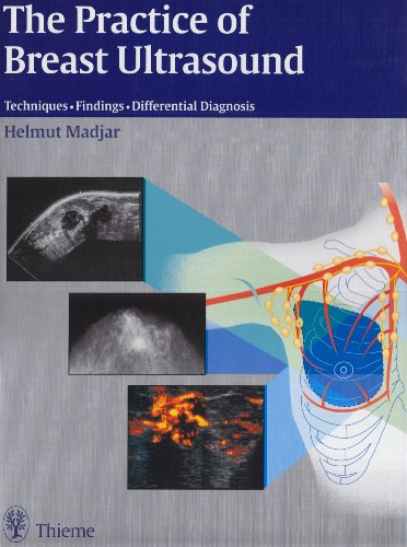 Pdf The Practice Of Breast Ultrasound Download E Books F5d216f8f2