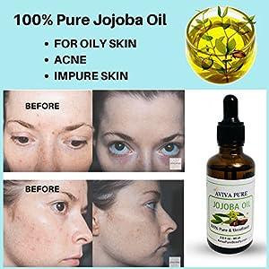 Pure Jojoba Oil, Acne Remedy by Aviva Pure- Jojoba Oil Moisturizer For Hair, Nails, Face, Skin – Pure Jojoba Massage Oil, Makeup Remover, Cuticle Oil, Face Moisturizer- 2oz