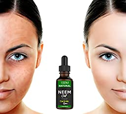 Cammile Q Neem Oil - For Skin, Hair and Acne - Pure and Cold Pressed - A Natural Beauty Treatment